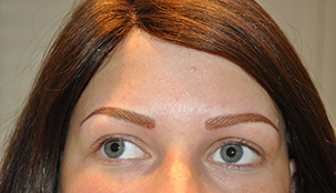 Alopecia Areata behandeld met permanente make-up