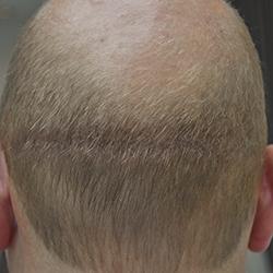 haartransplantatie na een pmu behandeling