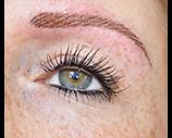 portfolio eyebrow treatment