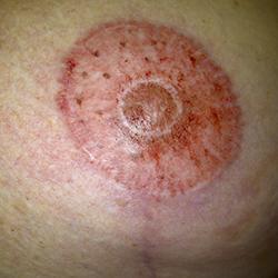 littekens na borstverkleining