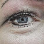 oog resultaat na een behandeling