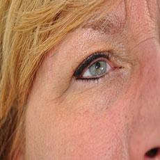 eyeliner na behandeling