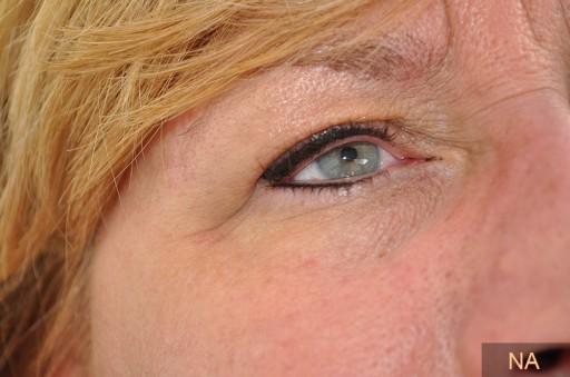 eyeliner na de behandeling