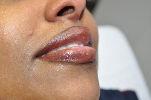 lips_behandeling_2